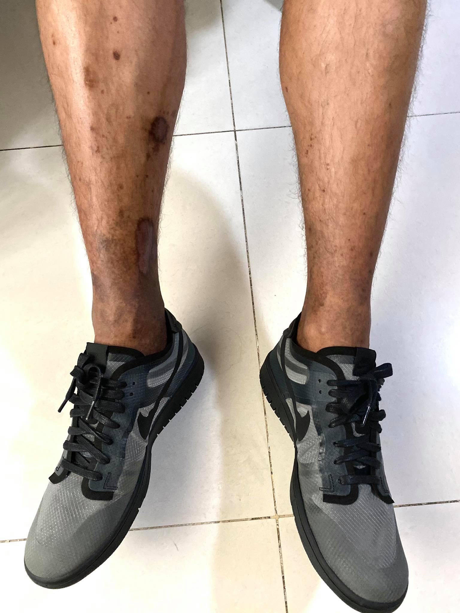 PBA-Season-46-Jaypee-Mendoza-legs Jaypee Mendoza shares battle with DVT, road to recovery Basketball News PBA  - philippine sports news
